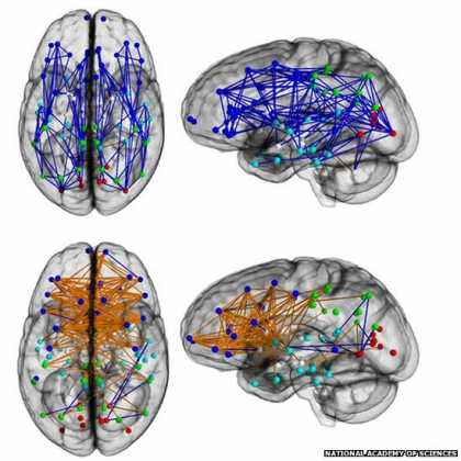 Men and women's #brains are 'wired differently'